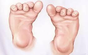 doğuştan çarpık ayak ve tedavisi